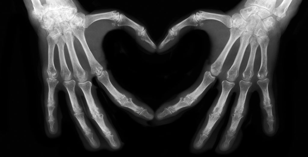 x-ray image of two hands making the shape of a heart.